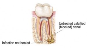 Bacteria in tooth needing root canal.